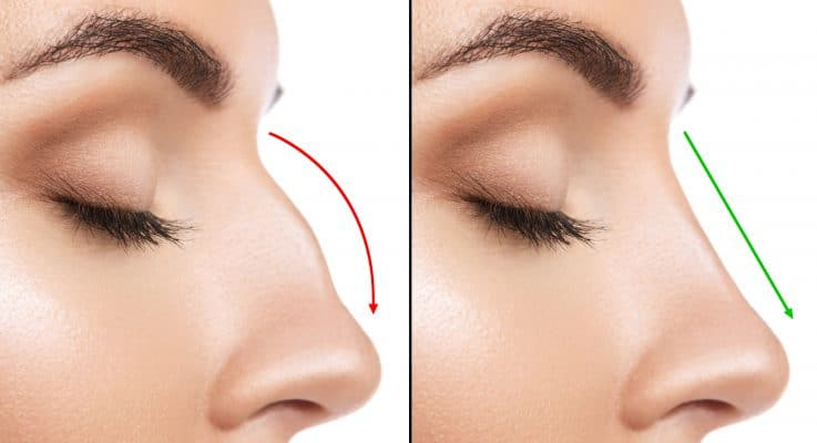 Rhinoplasty Beyond Beauty Plastic Surgery